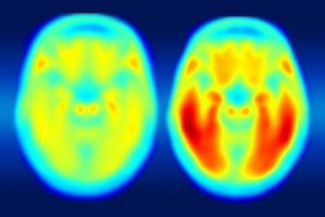 Tau is better marker of progression to Alzheimer's disease than amyloid beta